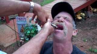 getlinkyoutube.com-Redneck Dentist: East Texas tooth pulling