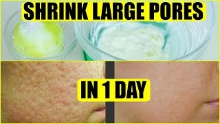 How To Get Rid Of Large Pores In 1 Day | SuperPrincessjo