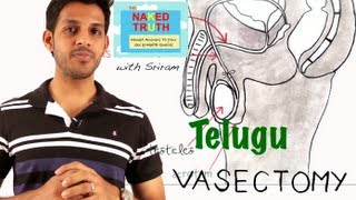 What is a Vasectomy?- Telugu