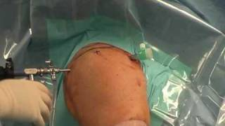 getlinkyoutube.com-Arthroscopic Shoulder Surgery