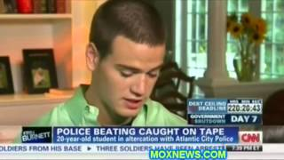 Cops who mauled kid with a K9 being investigated for police brutality