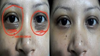 getlinkyoutube.com-Get rid of eyes dark circles naturally