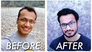 getlinkyoutube.com-Hair Transplant | Before and After | 1 Year Post Surgery