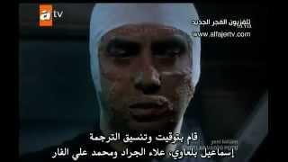 getlinkyoutube.com-الطبيب يكشف عن وجه مراد علمدار بعد العملية! :(