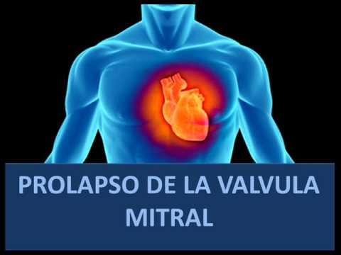Prolapso de la válvula mitral - Fisiopatología