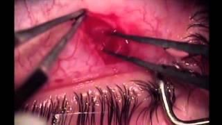 getlinkyoutube.com-Peepers Creepers - Live Worm in Woman's Eye!