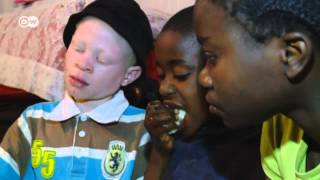 Albinos Face Deadly Superstition