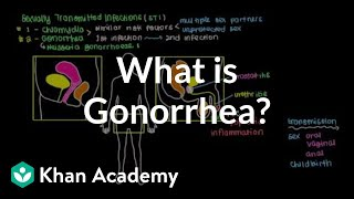 getlinkyoutube.com-What is gonorrhea? | Infectious diseases | NCLEX-RN | Khan Academy