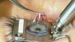 getlinkyoutube.com-LIVE LASIC EYE SURGERY