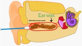 getlinkyoutube.com-Ear Wax Removal - 2D Animation