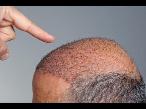 DTUP – Transplante capilar recupera danos irreversíveis de queda de cabelo