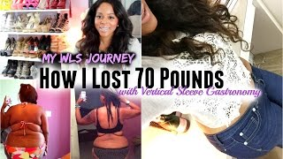 getlinkyoutube.com-My WLS Journey: How I Lost 70 Pounds With Vertical Gastric Sleeve Gastrectomy