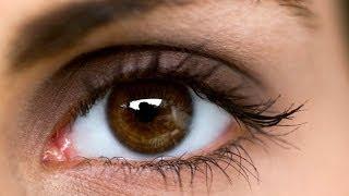 getlinkyoutube.com-كيفية التخلص من تجاعيد العين بسرعة بطريقة الطبيعية
