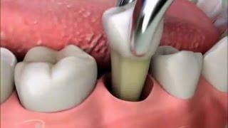 getlinkyoutube.com-Последствия удаления зуба