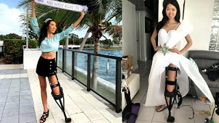 Injured Miss Florida Contestant Uses 'Pirate Leg' at Pageant