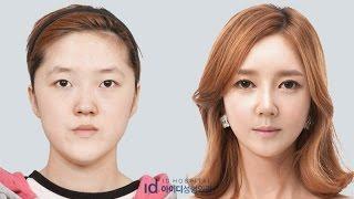 getlinkyoutube.com-Let Me In Season3 คิมอึนแอ, ศัลยกรรมดาราเกาหลี