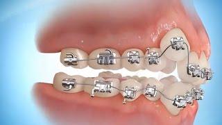 getlinkyoutube.com-TEL TAKTIRMA!! - Adding Braces&Dental Crown Placement