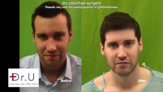 Best FUE Hairline Transplant In Los Angeles For Forehead Reduction Using Head and Nape Hair