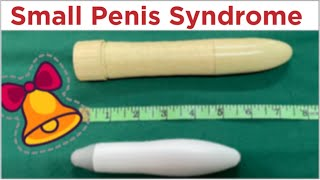 getlinkyoutube.com-Sex Education In Kannada 01st weekend of April 2016
