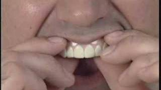 getlinkyoutube.com-Imako Cosmetic Teeth® Fitting Instructions