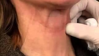 getlinkyoutube.com-Botox Neck Lift - in Phoenix | Scottsdale Arizona