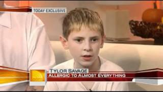 getlinkyoutube.com-'2007' The boy who is allergic to almost every food - TODAY Health