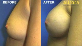 Patient interview 7 weeks post Breast Enlargement Surgery