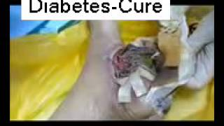 getlinkyoutube.com-Maggot Therapy for Diabetic Wound by Dr HC Chang