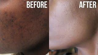 getlinkyoutube.com-Get Rid of Acne &  Hyperpigmentation (Dark Spots)
