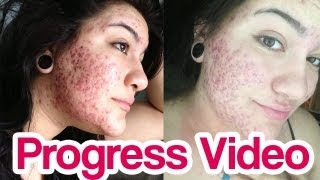 getlinkyoutube.com-Before & After Accutane SEVERE Acne Progress Video [Shitty Quality]