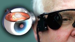getlinkyoutube.com-Bionic Eye Cures Blindness