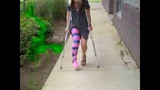 enyesadita en muletas in fiber multicolor long leg cast