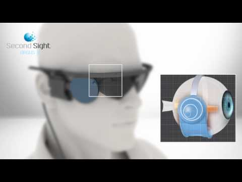 Second Sight EN 2012 Argus II Retinal Prosthesis System Artificial Retina Bionic Eye