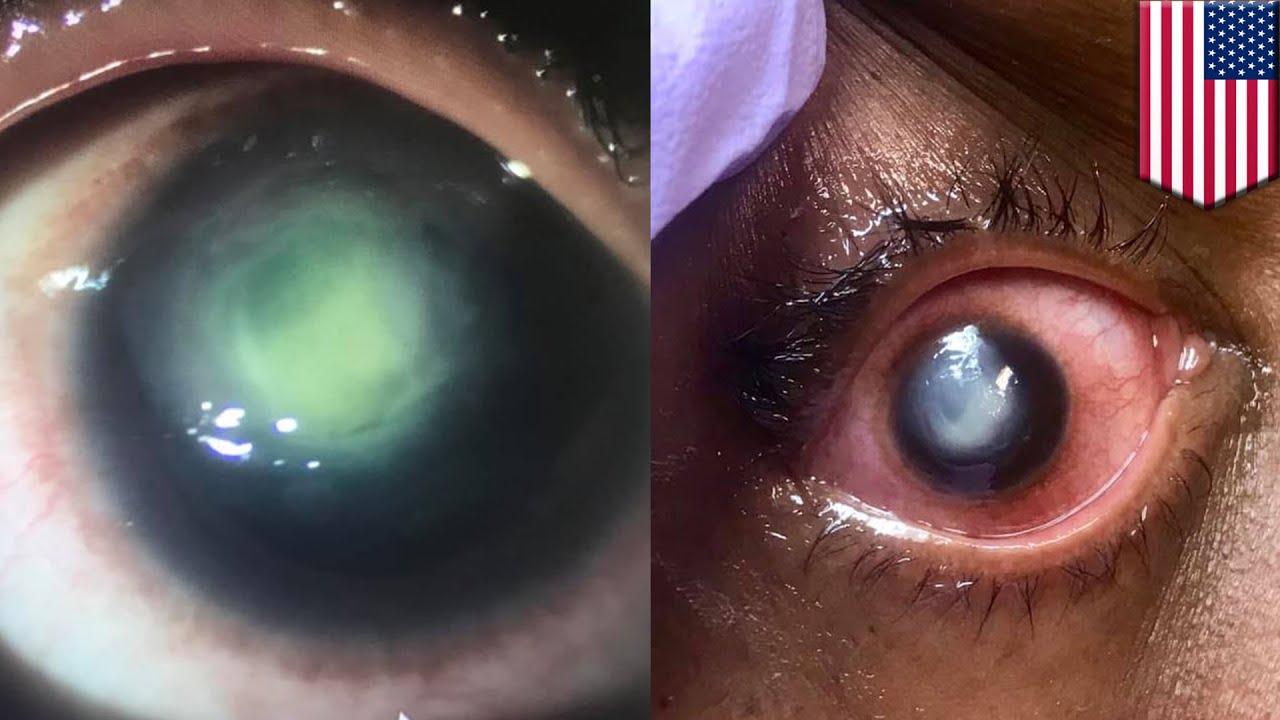 Kisah-kisah Horor bagi yang Malas Melepas Lensa Kontak Saat Tidur