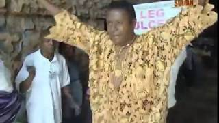 getlinkyoutube.com-TB Joshua -- Urdu -- Diabetes Foot Ulcer Healed