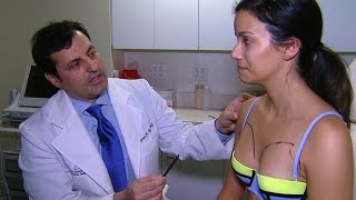 Instabreast: Is the '24-Hour Boob Job' the Next Big Plastic Surgery Craze?