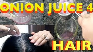 getlinkyoutube.com-Onion and hair growth - How to use onion juice the right way to prevent hair loss/extreme regrowth