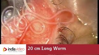 getlinkyoutube.com-20 cm Long Worm In The Human Eye, First Ever Recorded On Video | India Video
