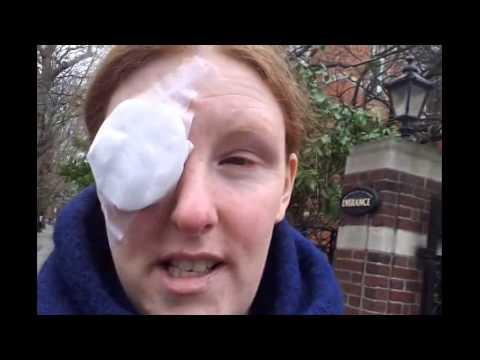 My Chalazion/Meibomian Eye Cyst Removal