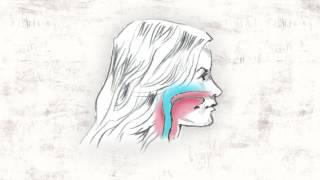 getlinkyoutube.com-The Story of Headgear
