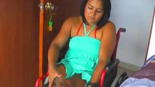 getlinkyoutube.com-rechelle Double leg amputee lost leg reflections