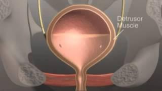 Bladder Health - What is Overactive Bladder?