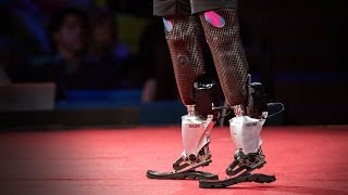 getlinkyoutube.com-New bionics let us run, climb and dance | Hugh Herr