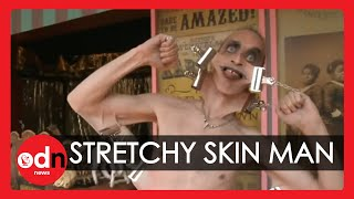getlinkyoutube.com-Meet the man with the world's stretchiest skin ... WEIRD!