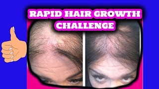 getlinkyoutube.com-Thin and Bald  Hair Growth Challenge | 3 Ingredients