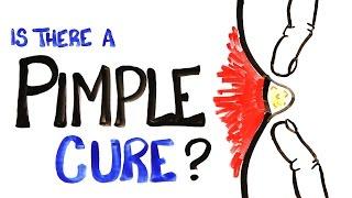 getlinkyoutube.com-Is There A Pimple Cure?
