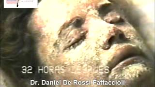 getlinkyoutube.com-Tratamientos Dermatológicos Perú _ Peeling Químico Profundo con Phenol