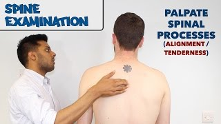 Spine Examination - OSCE Guide (New Version)
