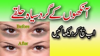 getlinkyoutube.com-Aankhon Ke Gird Siyah Halkon Ka Ilaj -  How To Remove Under Eye Dark Circels in Urdu/ Hindi