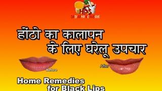 getlinkyoutube.com-होठों के कालापन लिए घरेलू उपचार / Home Remedies For Black Lips ( Hindi )